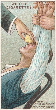 How to Stop Bleeding from the Nose, no.31 from the 'First Aid' series of 'Wills's Cigarettes' cards, 1913 Prints by English School | Magnoli...