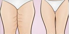 Que tal eliminar a gordura das pernas sem deixar de ganhar massa muscular?A combinação é a de sempre: exercício físico e uma dieta adequada.Vale muito a pena!