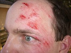 17 best cuts and abrasions images on pinterest special effects