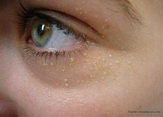 ¿Tienes puntos blancos alrededor de los ojos? Es milia y sabemos cómo evitarlo!