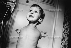 birth defects of the children of Chernobyl Chernobyl Disaster, Chernobyl 1986, Ukraine, Unusual News, Human Oddities, Nuclear Disasters, World Press, Foto Real, Medical History
