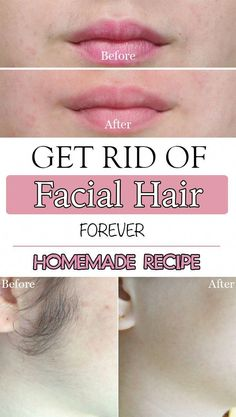 Get rid of facial hair forever #UnwantedHairRemoval #RemoveUnwantedHairPermanently #BestWayToRemoveUnwantedHair #UnwantedHairGrowth #UnwantedHairOnChin #BestFacialHairRemoval Permanent Facial Hair Removal, Upper Lip Hair Removal, Back Hair Removal, Underarm Hair Removal, Electrolysis Hair Removal, Remove Unwanted Facial Hair, Hair Removal Methods, Hair Removal Cream, Unwanted Hair