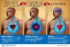 Difference between a heart attack, cardiac arrest and a stroke.