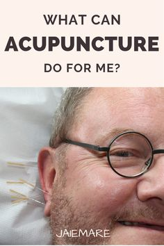 In an environment of stress, illness, and disease, acupuncture is a relaxing way to calm the body, restore balance, and well-being. Acupuncture treatments and Chinese medicine are a drug-free, safe, natural and effective way to support and strengthen the systems of the body. Acupuncture for back pain | Acupuncture benefits | Acupuncture for anxiety | Acupuncture facts | Acupuncture for migraines | Acupuncture treatment #holistichealth #traditionalchinesemedicine #healing #selfcare #holistic Acupuncture For Anxiety, Acupuncture Benefits, Chronic Migraines, Fibromyalgia, Chronic Pain, Message Therapy, Cupping Therapy, Health Heal