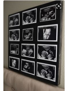 Sonogram collage