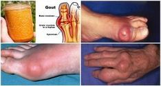 The buildup of uric acid in the bloodstream leads to a condition known as gout. This is very painful chronic condition just like arthritis where the uric acid accumulation creates . Vicks Vaporub, Arthritis Remedies, Rheumatoid Arthritis, Arthritis Diet, Arthritis Exercises, Gota A Gota, How To Cure Gout, Types Of Arthritis, Uric Acid