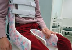 Cerebral Palsy Activities, Milwaukee Brace, Angelman Syndrome, Braces Girls, Occupational Therapy Assistant, Cloth Diaper Pattern, Adaptive Equipment, Sensory Integration, Special Needs Kids