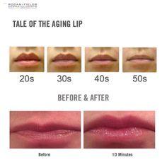 R + F lip microdermabrasion and serum