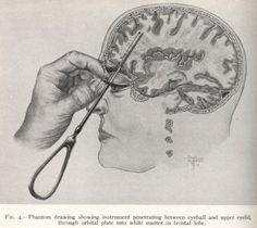 "Lobotomy diagram. Thousands of these operations were performed to ""cure"" depression, agitation, hyperactivity, anger issues, and many other conditions before finally losing favor in the medical community."