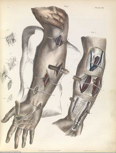 Grisly: Illustration from a 1866 book shows how surgeons tying up the arteries…