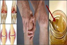 Vyliečte si kolená a zregenerujte si kosti s receptom ktorý udivil lekárov | Báječné Ženy