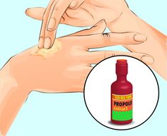 How to Remove Annoying Papillomas and Warts Once For All Fig Juice, William Shakespeare Sonnets, Garlic Pills, Hpv, Pure Castor Oil, Natural Exfoliant, Warts, Tea Tree Oil, Skin Problems