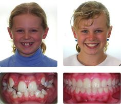 It is the best transformation of the teeth through braces before and after braces. Teeth After Braces, Braces Before And After, Dental Braces, Dental Teeth, Activated Charcoal Teeth Whitening, Best Teeth Whitening Kit, Braces Tips, Cute Braces, Brace Face