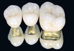 Металлокерамические коронки на зубы Dental Art, Dental Teeth, Dental Implants, Porcelain Crowns, Dental Technician, Dental Bridge, Dental Laboratory, Dental Crowns, Dentistry