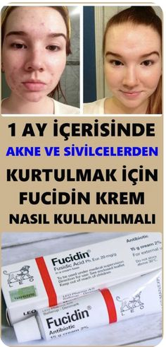 1 Ay İçerisinde Sivilce ve Aknelerden Kurtulun With Fucidin cream, you can get rid of acne and acne problems as a result of proper use. Brown Eyeshadow, Makeup For Brown Eyes, The Body Shop, Sephora, Smoking Cessation, Makeup Tutorial For Beginners, Eye Tutorial, How To Get Rid Of Acne, Diet
