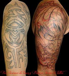 Eliminación de tatuaje en brazo con láser / Remove laser tattoo  #EliminarTatuaje #LaserTatuaje #RemoveTattoo #LaserTattoo