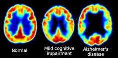 Women Suffer Higher Rates of Cognitive Decline in Alzheimer's Disease - A new study suggests the rate of regional brain loss and cognitive decline caused by early stages of Alzheimer's disease is higher in women and those with a genetic risk factor for AD. NeuroscienceNews.com.