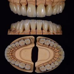 Lente Dental, Protésico Dental, Dental Photography, Facial Anatomy, Dental Technician, Dental Crowns, Haircuts For Men, Dentistry, Teeth