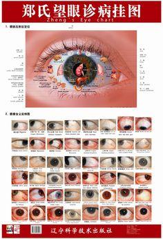 diagnosis-eyes - Google Search