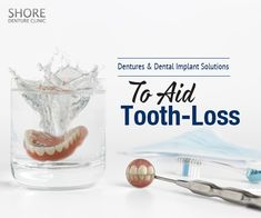 Dentures and dental implants both provide a stable option during times of tooth loss. Read on to know how they complement each other. Dental Implants, Tooth, Times, Teeth, Dental