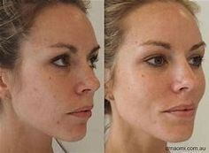 The option of dermal filler is pivotal and this depends on the areas injected and corrected. Cheek Fillers, Facial Fillers, Dermal Fillers, Cheek Injections, Types Of Facials, Pretty Hurts, Muscle Function, Facial Muscles, Lip Plumper