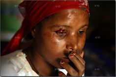 Article: The Horror Behind Child Marriage: Child Brides (GRAPHIC CONTENT WARNING)   Rea here  http://www.slrlounge.com/horror-behind-child-marriage-child-brides-warning-graphic-content