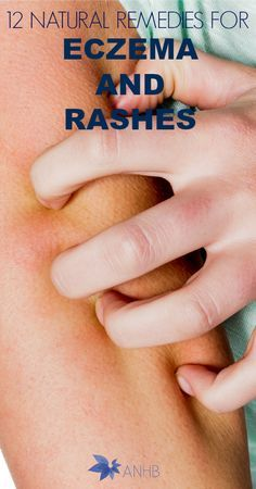12 Natural Remedies for Eczema and Rashes #eczema #rashes #Health #naturalremedies