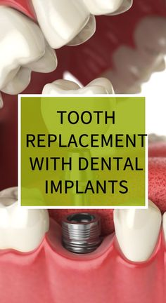 Tooth Replacement with Dental Implants Herbal Remedies, Home Remedies, Natural Teething Remedies, Natural Cold Remedies, Health Diet, Health And Wellness, Health Vitamins, Eating Organic