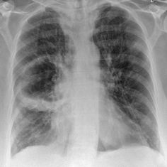 A lung abscess is a circumscribed collection of pus within the lung, is are potentially life threatening. They are often complicated to manage and difficult to treat.  The classical appearance of  a pulmonary abscess is a cavity containing an air-fluid level.   CT is the most sensitive and specific imaging modality to diagnose a lung abscess.  Read more: http://radiopaedia.org/articles/lung_abscess