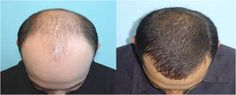 Needs the hair transplant doctor in India ? Aesthstics medispa is the best surgery provider in India