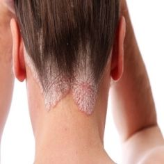 how to get rid of eczema on face forever
