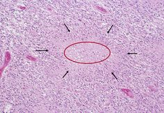 膠細胞腫(膠芽腫)ミクロ像(HE中拡大)