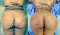 Very large volume buttock reshaping performed by Daniel Delvecchio M.D. of Boston Massachusetts, world-renowned fat transplantation surgeon