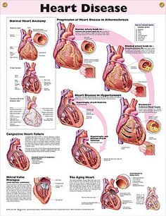 Heart Disease anatomy poster congestive heart failure, mitral valve prolapse and the effects of an aging heart are depicted.