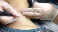 אורית אורמדיקס קוסמטיקה רפואית - YouTube