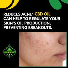 Reduces Acne: CBD Oil can help to regulate your skin's oil production, preventing breakouts. Oil Production, Oils For Skin, Hemp, Your Skin, King