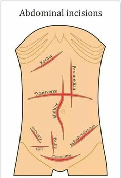 Abdominal incisions