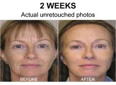 How to make your own beauty cream, this woman is 53 and looks younger using derma perfect and black diamond