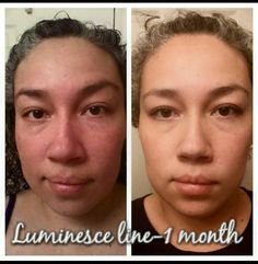 Look 10 years younger in 1 month on Luminesce - could you imagine what a lifetime on these products will do for you??? www.SkinCareForAll.JeunesseGlobal.com