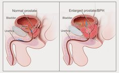 Image result for Prostatitis and Homeopathy