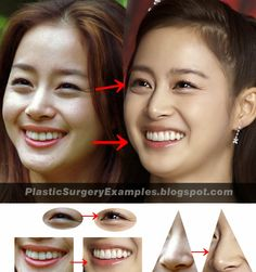 Plastic Surgery Examples: Kim Tae Hee plastic surgery before & after 金泰希 – Care – Skin care , beauty ideas and skin care tips K Beauty, Beauty Hacks, Beauty Ideas, Korean Plastic Surgery, Plastic Surgery Before After, Bigger Eyes, Kim Tae Hee, Double Eyelid, Eyelid Surgery