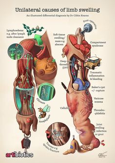 Figure Causes of unilateral limb swelling: lymphoedema, post operative swelling, trauma Trauma, Illustrations Médicales, Compartment Syndrome, Medical Pictures, Nursing Mnemonics, Medicine Student, Nursing School Notes, Medical Anatomy, Medical Illustration