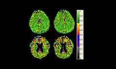 Cell density remains constant as brain shrinks with age - http://bioengineer.org/cell-density-remains-constant-as-brain-shrinks-with-age/
