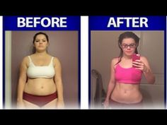 Weight loss surgery independence mo