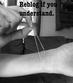 Elastic band coping skill for self harm. I tried this for purging but I got red marks on my wrist and they looked like scars since my skins sensitive so I stopped. But it can help.