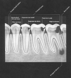 This is what can be seen with dental X-rays that is not consistently visible with the naked eye.... Especially when the cavity is small... GenerationsDentalCDA.com