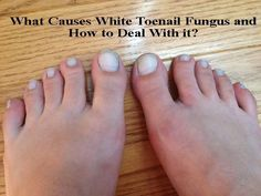 White toenails can develop for several reasons. Read how it can take place and a