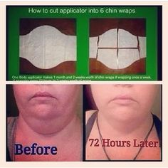 A testimonial of before and after a chin wrap!   #ItWorks #ItReallyDoesWork  Mleigh007@gmail.com 561-705-5779