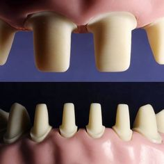 Blue-eyed Dental Crowns Before And After Life Dental World, Dental Life, Dental Health, Dental Implant Surgery, Teeth Implants, Dental Images, Dental Anatomy, Crown For Kids, Restorative Dentistry