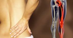 Treating sciatica pain can be very tiresome. Caused by inflammation or irritation of the sciatic nerve it runs all the way from your pelvis to the feet. Sciatica Pain, Sciatic Nerve, Nerve Pain, Sciatica Exercises, Treating Sciatica, Inversion Table, Massage Benefits, Low Back Pain, Natural Home Remedies